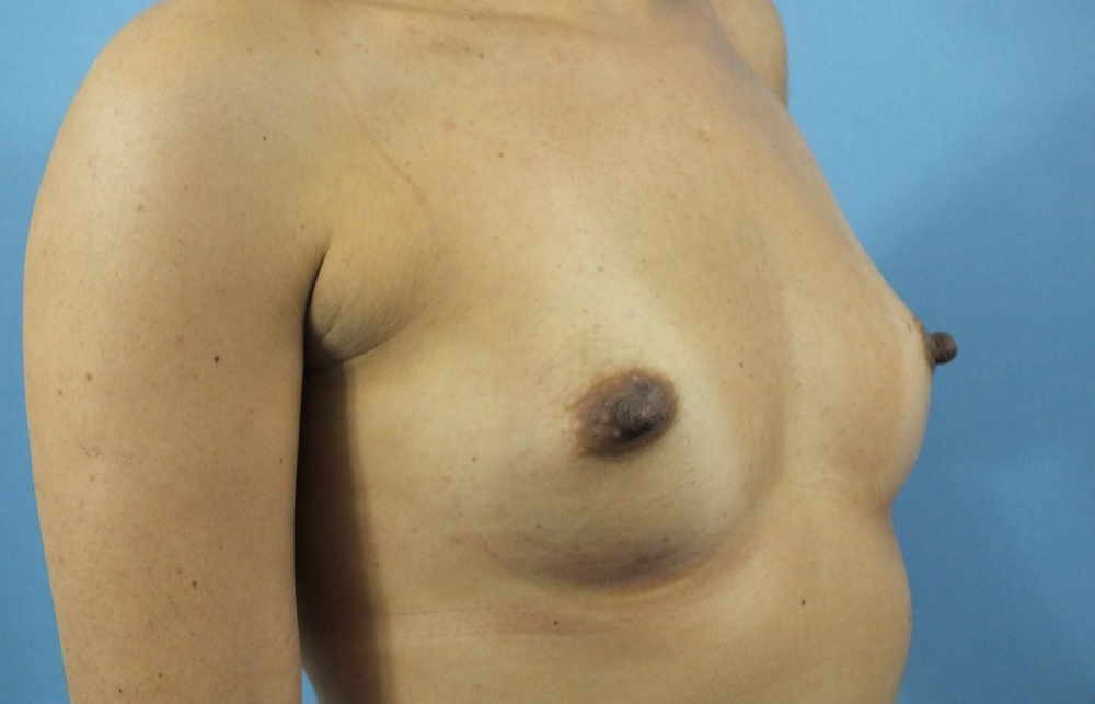 Before Breast Right Diag 7.jpg