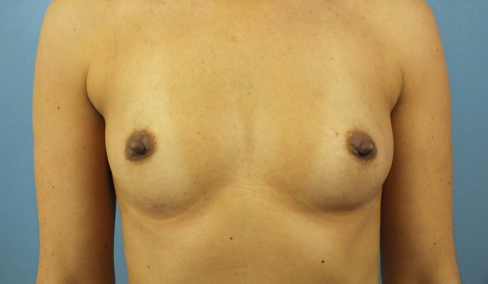 Before Breast Front 7.jpg