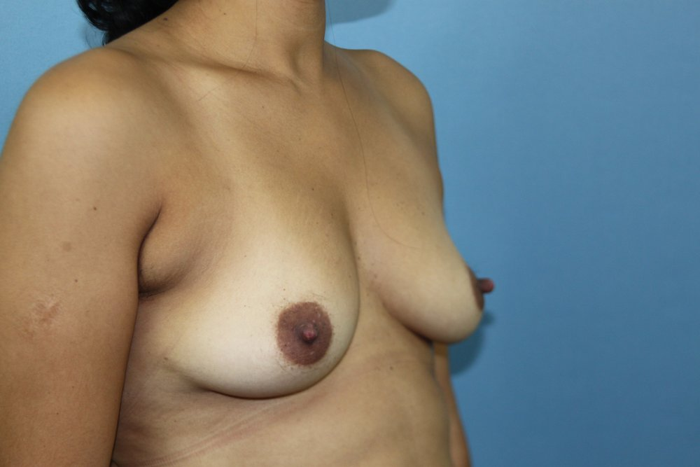 Before Breast Aug. Right Diag.jpg