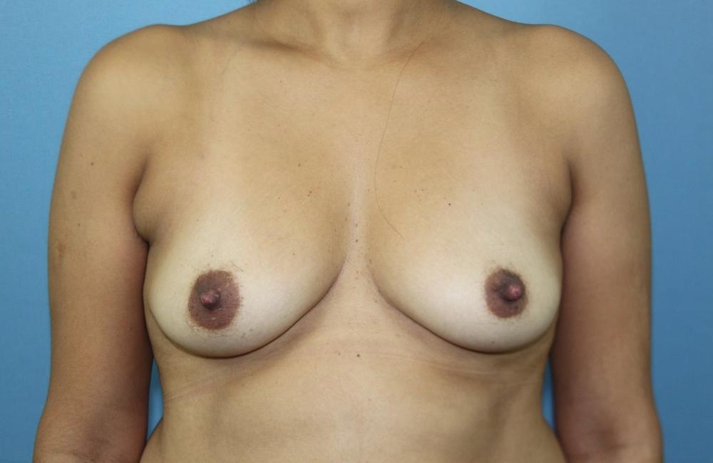 Before Breast Aug.jpg