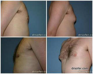 breast reduction men