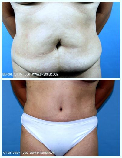 Tummy+Tuck+Fairfield+Plastic+Surgery+Center+Connecticut.jpeg