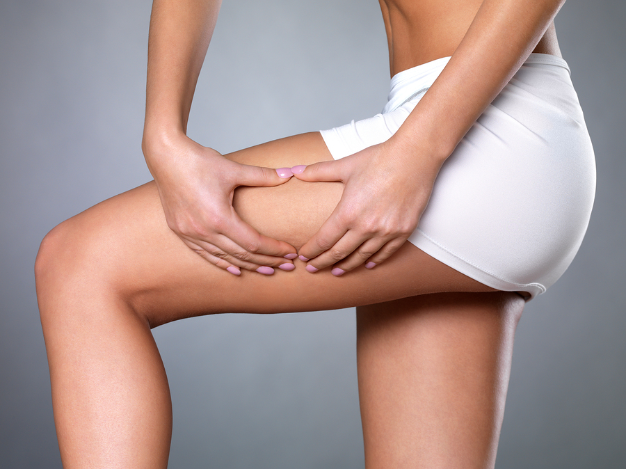 woman holding thigh where she wants thigh lift