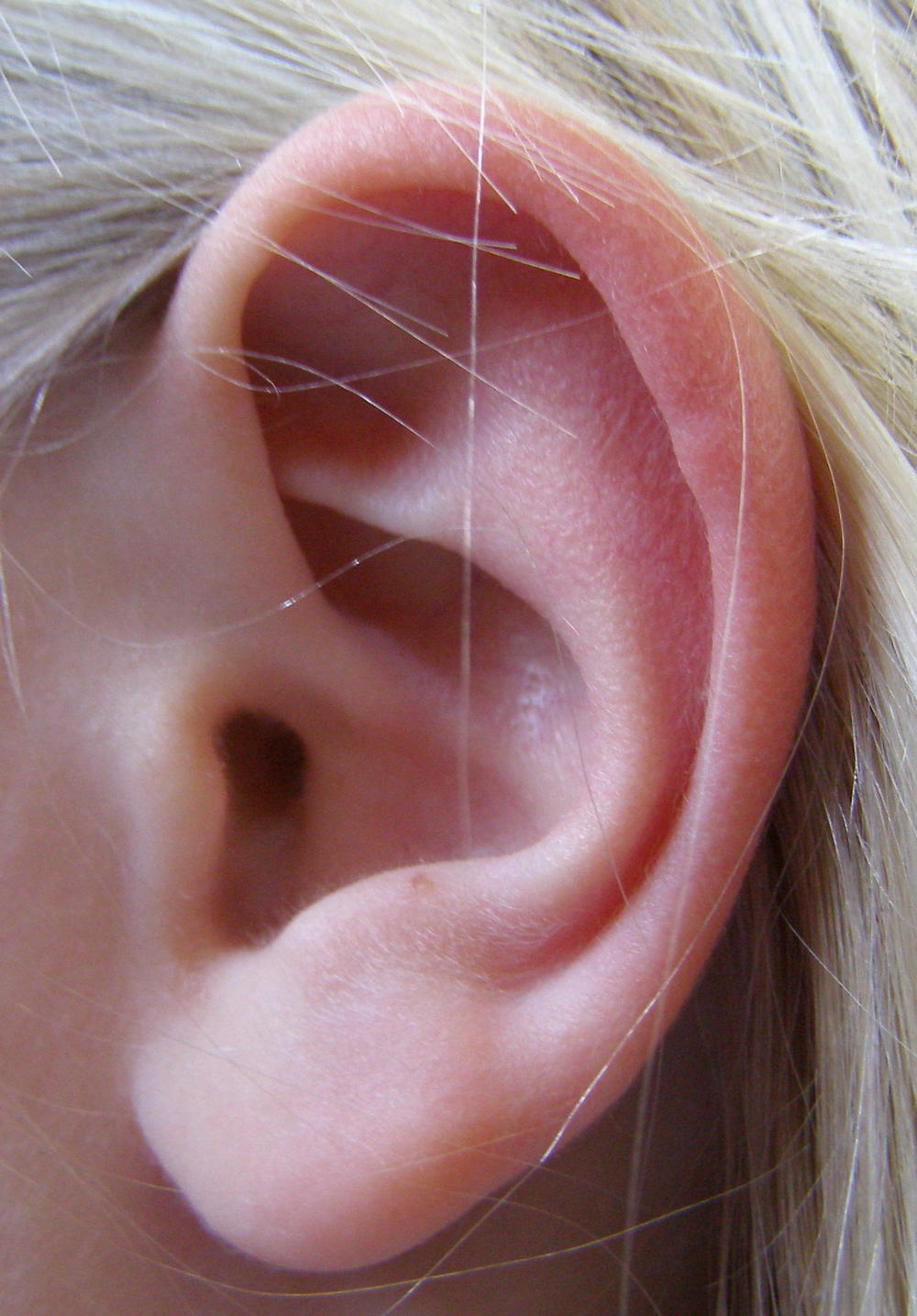 ear pinning - otoplasty example