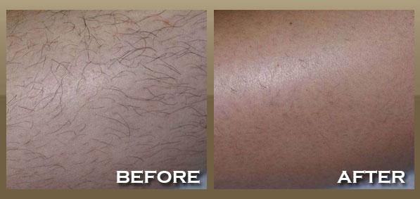 laser-hair-removal-legs.jpg