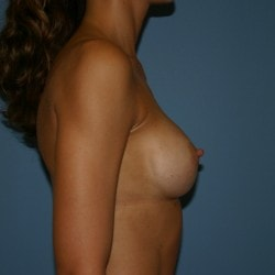 #breastaugmentation+fairfield+county+sofer+a2-min.jpg