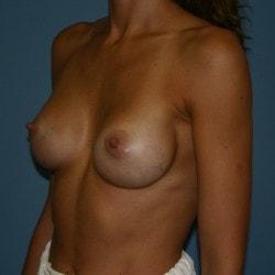 breastaugmentation+sofer+a2-min.jpg