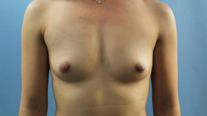 Before+breast+aug+front+-min.jpg