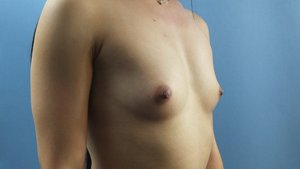 Before+Breast+Aug+diag+right-min.jpg