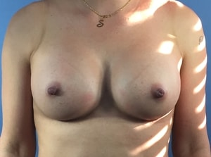 SH+after+breast+front-min.jpg