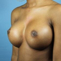 #breastaugmentationct+sofer+a1-min.jpg