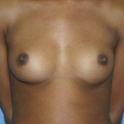 #breastaugmentationwestport+sofer-min.jpg