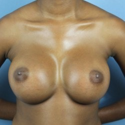 natrelle+breast+implant+a1-min.jpg
