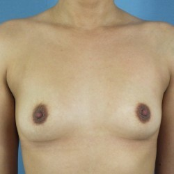 Breast-Augmentation-before-1099204-1894059-min.jpg