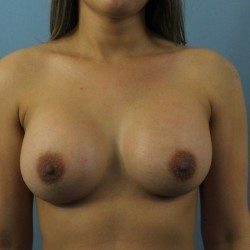 Breast-Augmentation-after-1099204-1894060-min.jpg