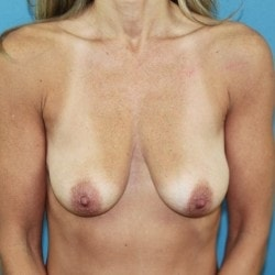 Before-Breast-Front-250x250-min.jpg