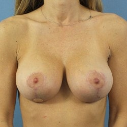 5-Mo-After-Breast-Lift-Front-250x250-min.jpg