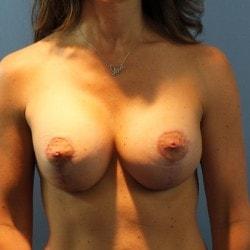 After-Breast-Lift-CT-Web-size-250x250-min.jpg