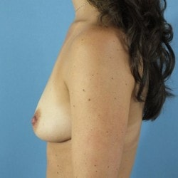 Before-Breast-Lift-W.Implants-Right-Diag-CT-Web-Size-250x250-min.jpg