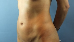 afterlipo1-min.JPG