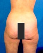 liposuctionbefore2-min.jpg