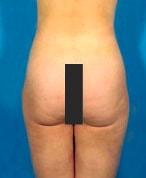 liposuctionafter2-min.jpg
