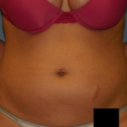 liposuction-for-women-before-fullsize-42006-82901-250x2501-min.jpg