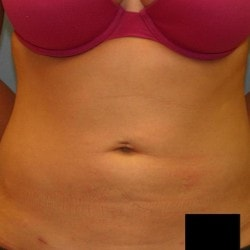 liposuction-for-women-after-fullsize-42006-82901-250x2501-min.jpg