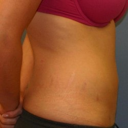 liposuction-for-women-after-fullsize-42006-82902-250x2501-min.jpg