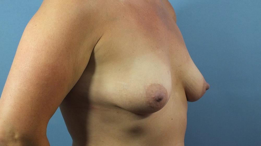 before MP breast side.JPG