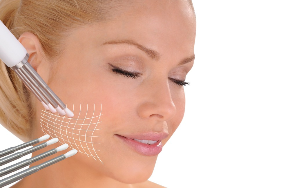 CACI Jowl Lift
