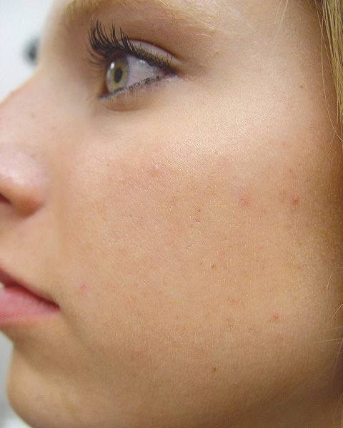Laser Acne Treatment After
