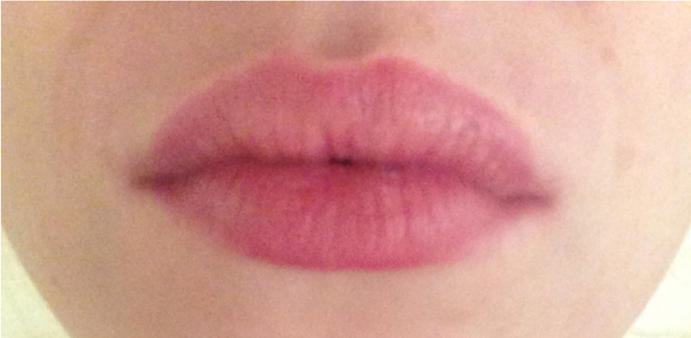 Lip Plumping  After