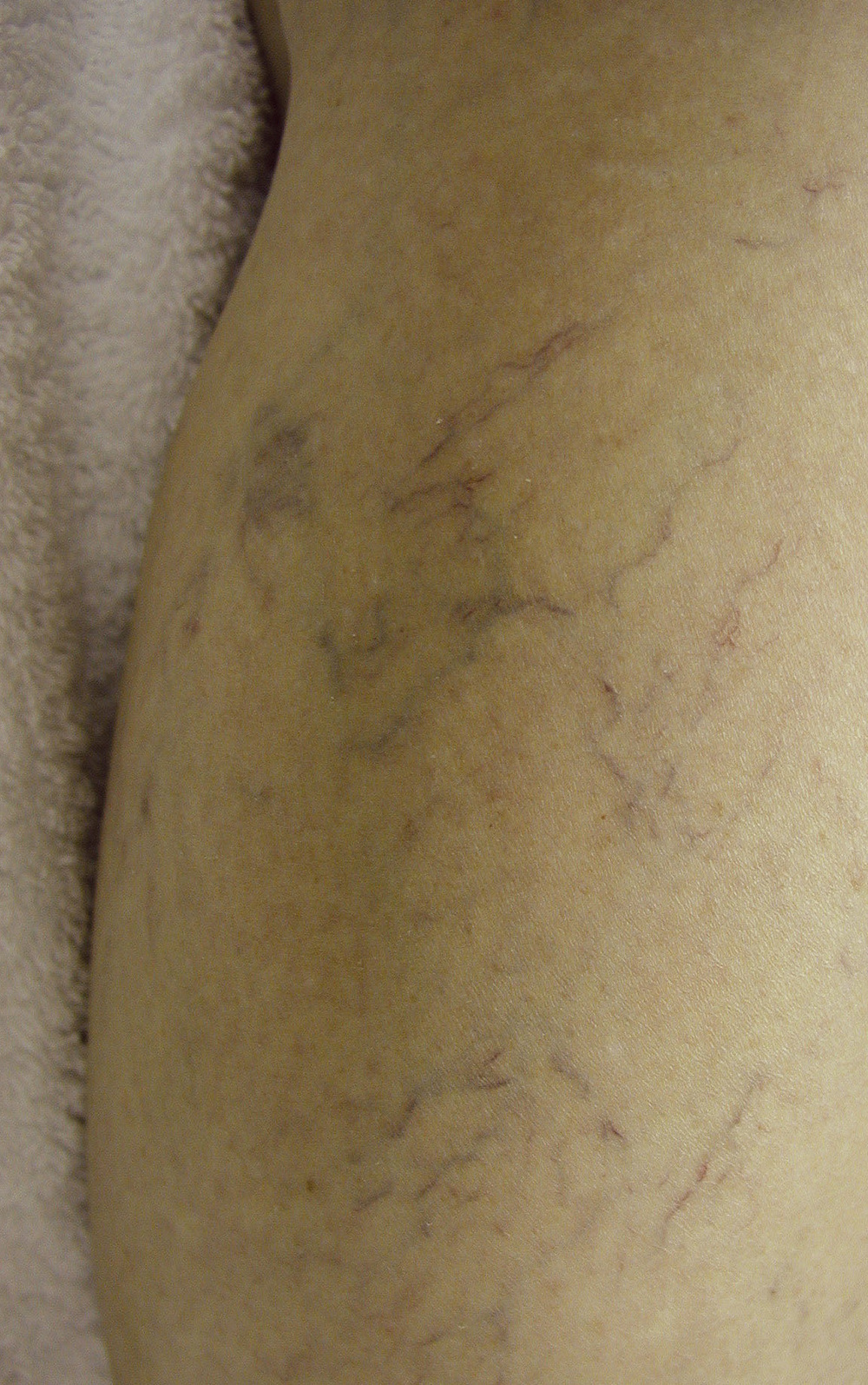 Before Thread Vein Removal