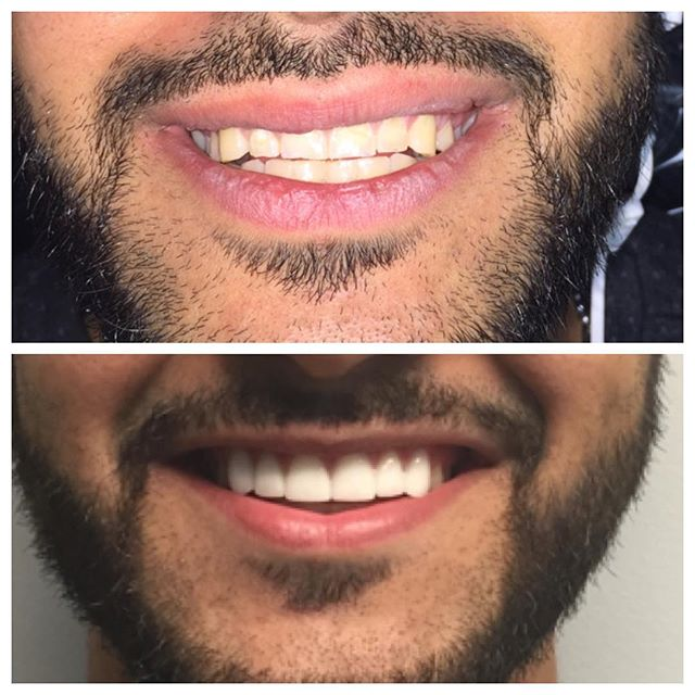 My patient was unhappy with the shape, length, and color of his teeth so we did 6 veneers for him. My goal was to keep them very natural looking. The results were awesome! I've never see anyone smile so much.  #smileallday #veneers #giftofasmile #dentist #dental #noveradental #upshow #shiningsmiles #novera #allday #niceteeth #smile #dentist #callmegerogeformanimsellineverybodygrills #toothartist