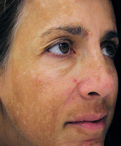 Photo of a melasma patient by USP Hospitales/Creative Commons