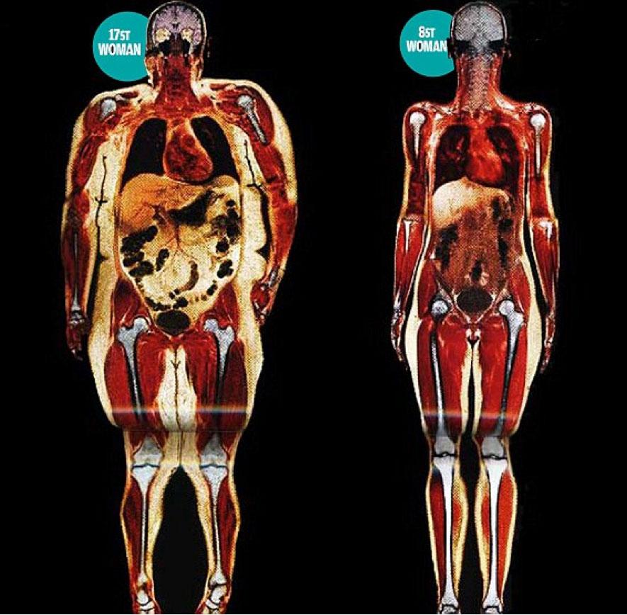 effects-of-obesity.jpg