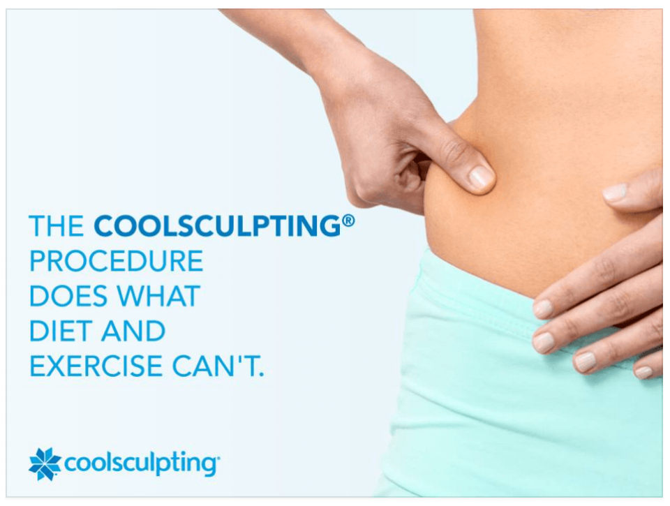 Coolsculpting-1.png