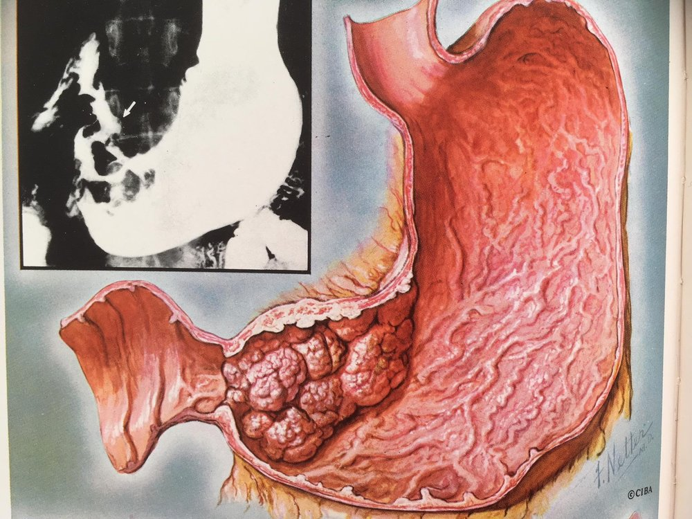 imagen 1. cancer gastrico en antro.JPG