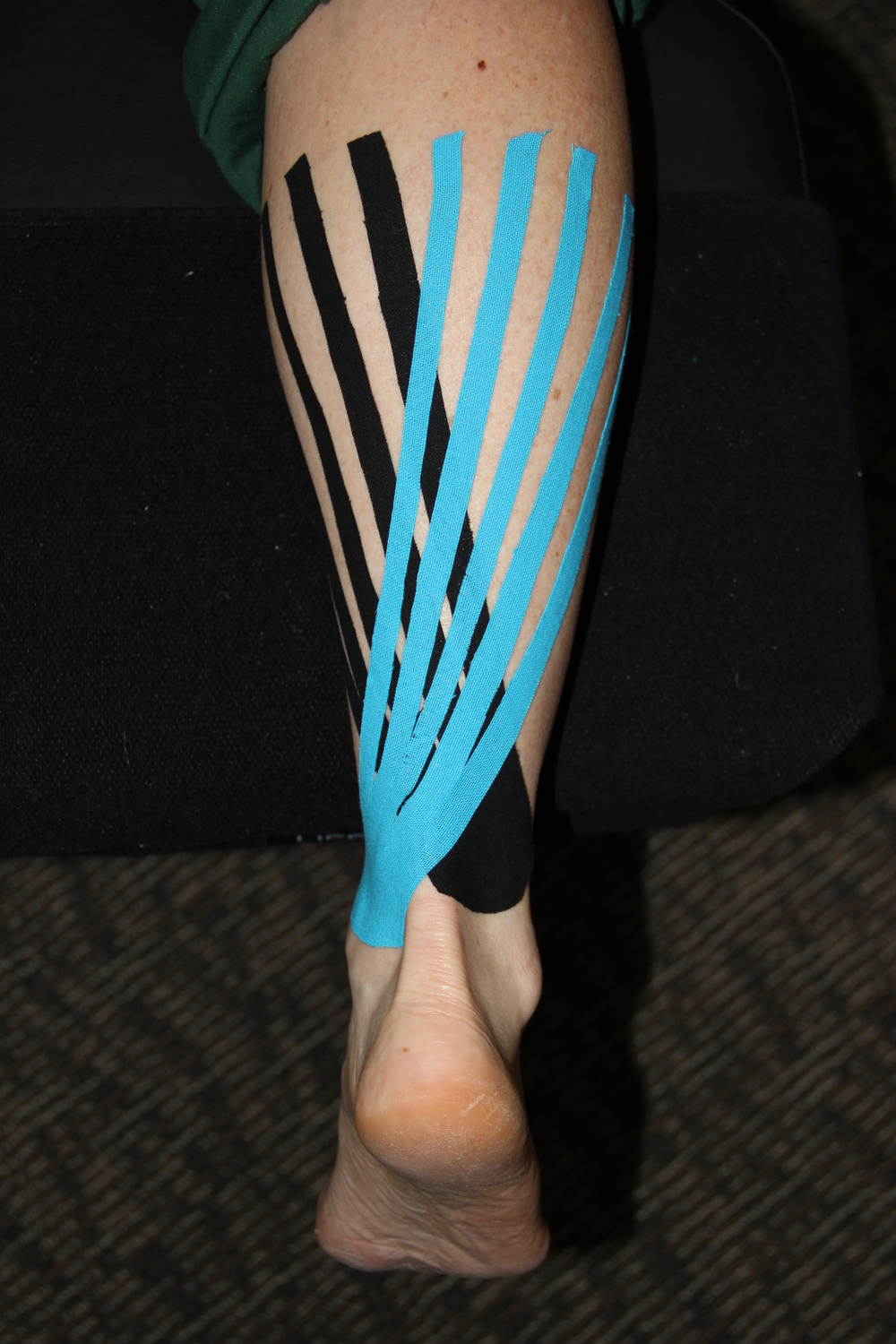 Taping of a strained calf muscle