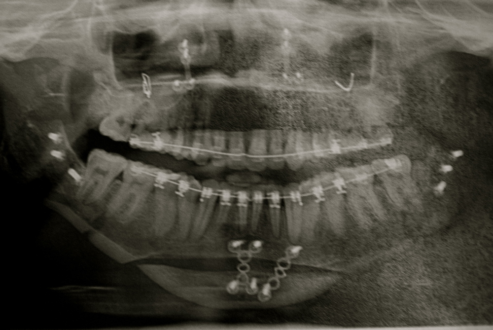 an x-ray of my jaw after my reconstructive facial surgery