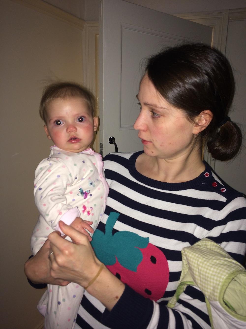 G only had the red-eye reflex in one eye, a symptom of Retinoblastoma