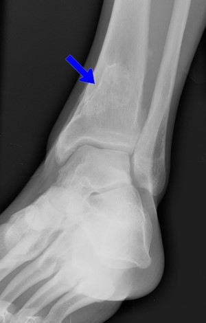 Figure 7: X-ray of Bone Lesions [26]