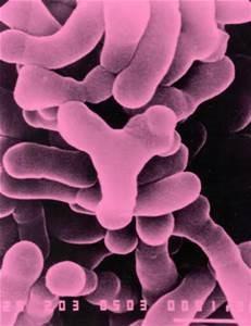 Figure 3: Gram-positive Bifidobacteria