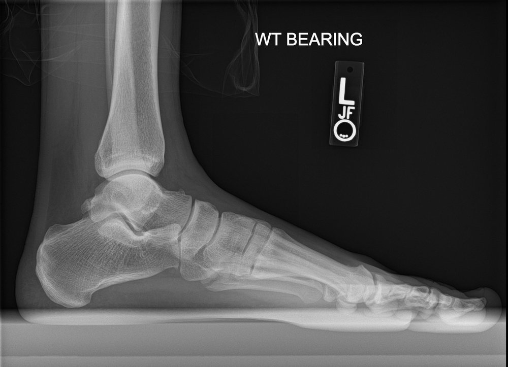 If you have a good eye there's a hairline fracture at the base of the fifth metatarsal. Image of my foot courtesy of The Steadman Clinic.