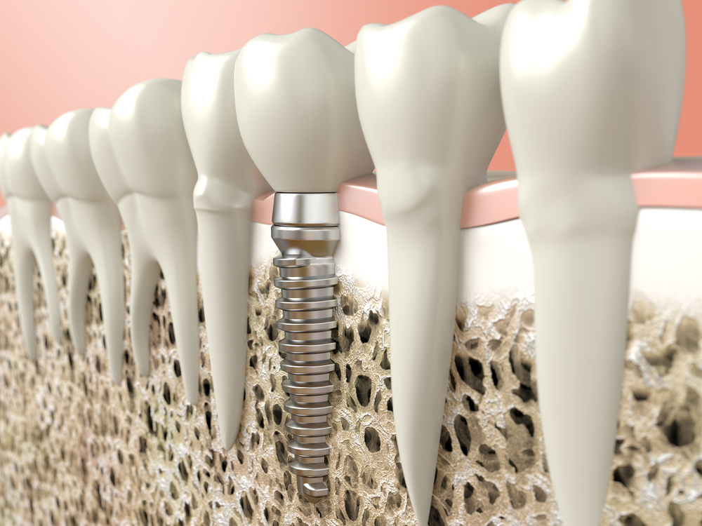 dental implants north shore dentist