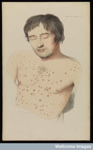 Plate 1 Tubercular sylphide, Robert Willis, 1841