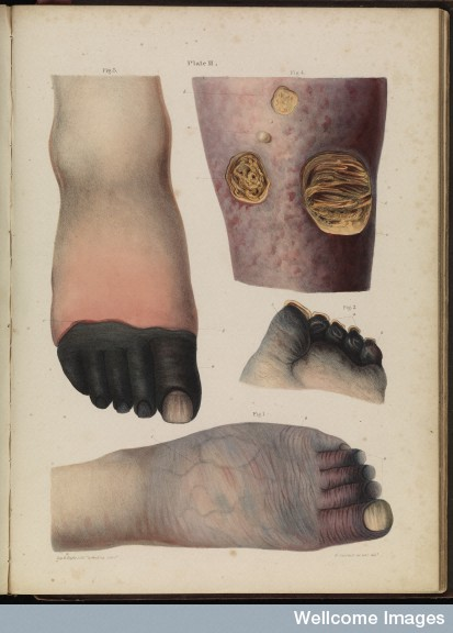 Plate II Mortification (gangrene), Robert Carswell 1830s