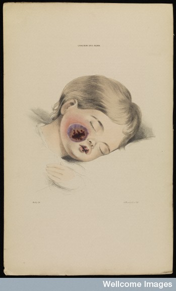 Cancrum oris noma, child Robert Willis, 1841