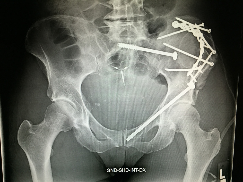 Nov 5 hip Xray.JPG